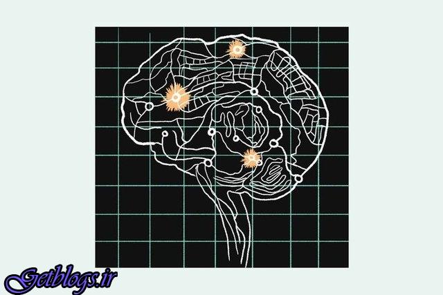 کمک هوش مصنوعی در پی بردن به رازها مغز