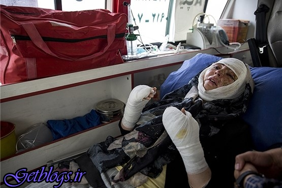 تصاویر + آخرین اوضاع قربانی اسیدپاشی به وسیله همسرش